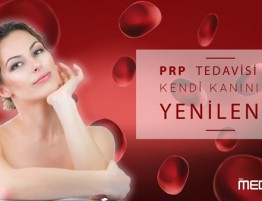 PRP-small